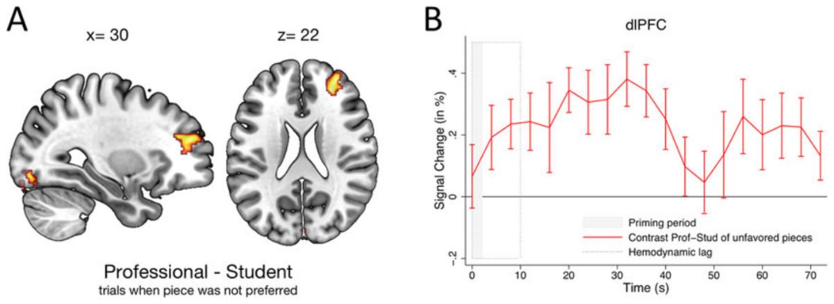 Overcoming Bias: Neurology and Music